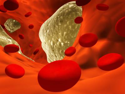 Suplementy nie sprawdzają się przy hipercholesterolemii