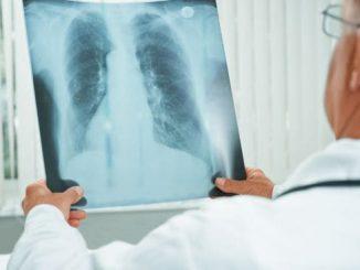 Rok 2020 pod znakiem niespełnionych rozwiązań w raku płuca
