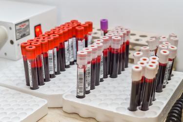 Morfologia krwi: kiedy warto ją wykonać