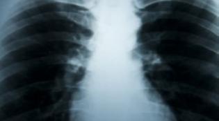 Sytuacja w raku płuca jest alarmująca, potrzeba konkretnych zmian!
